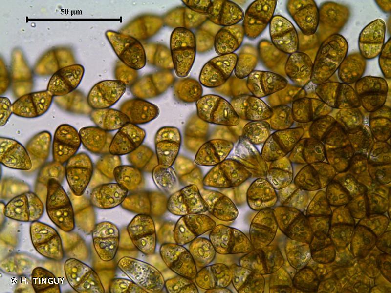 Scapania gymnostomophila