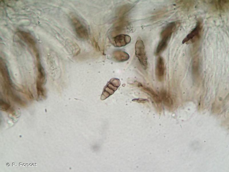 Diploschistes muscorum