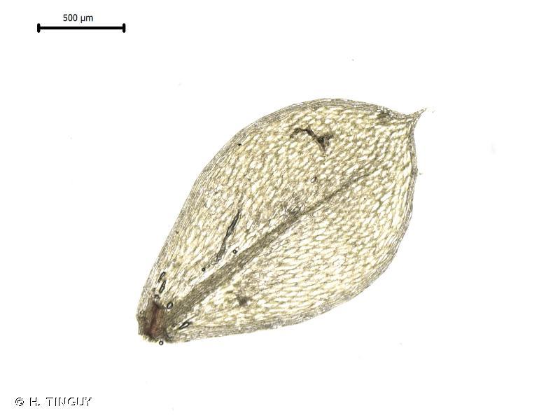 Epipterygium tozeri