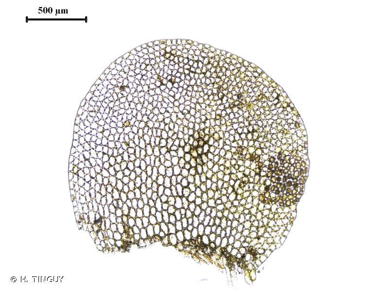 Leiomylia anomala