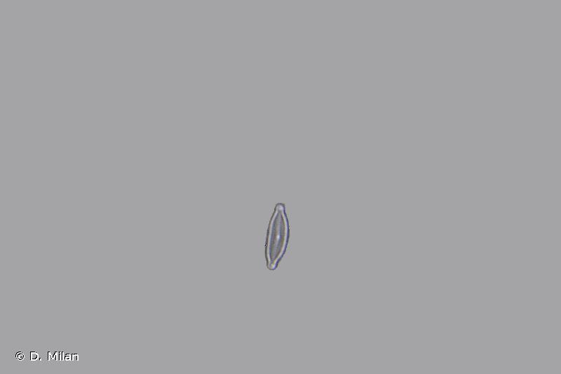 Encyonopsis microcephala